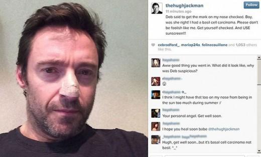Hugh Jackman operado tumor canceroso